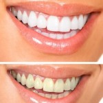 Look younger with whiter teeth